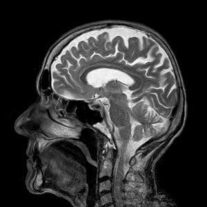Неврологията
