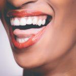 красива усмивка с бели зъби